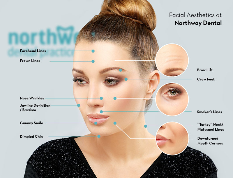 Botox Treatments in Maghull/Ormskirk