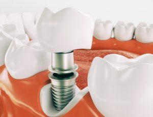 Dental Implants Ormskirk