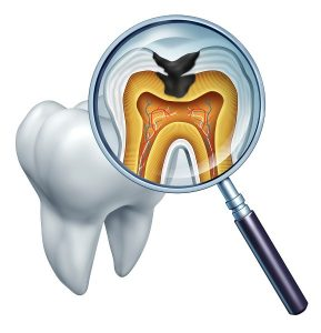 Root Canal Treatment in Maghull, Ormskirk