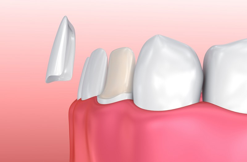 Veneers – Cosmetic Treatment