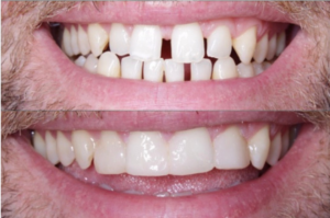 Composite Bonding before and after in Maghull
