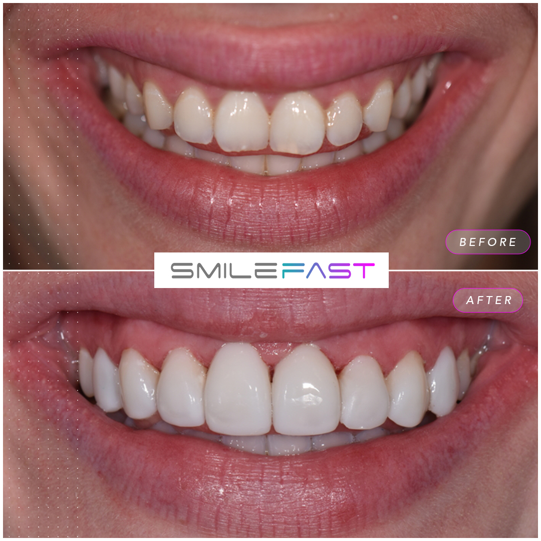 smilefast composite bonding